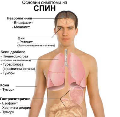 Symptoms_of_AIDS_bg